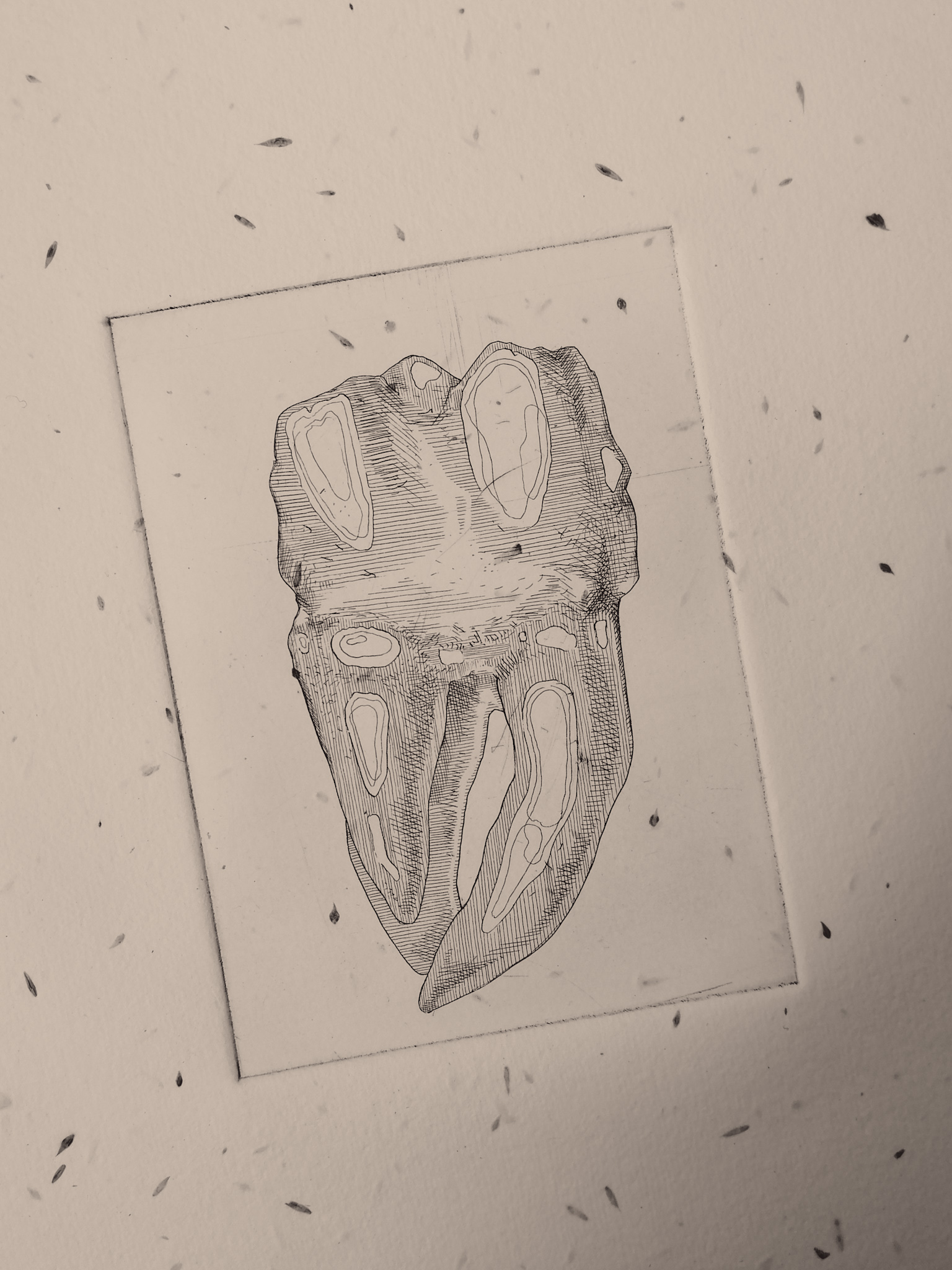 tooth etching by Tiina Lilja