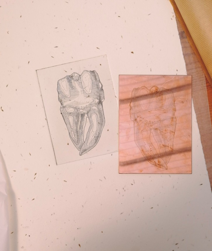 tooth etching and copper plate by Tiina Lilja